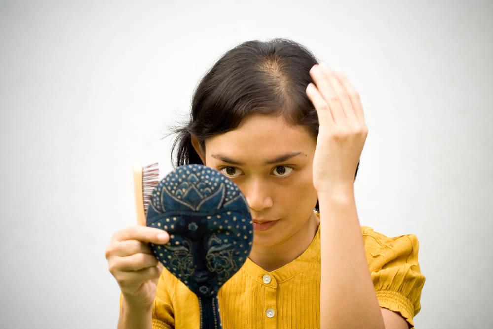 El estigma de la alopecia