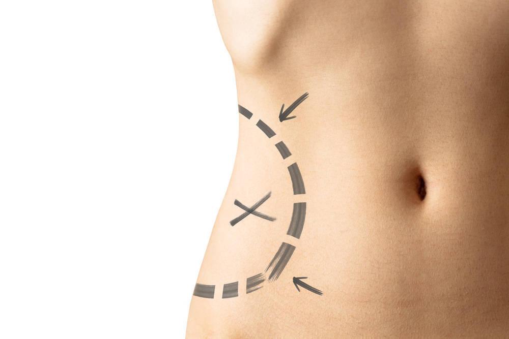 Clínica Imos, una solución para los problemas de obesidad